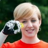 First Bionic Hand Designed For Women