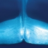 The Blue Whale Story with ROM Scientists
