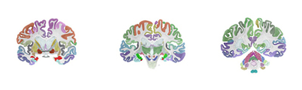 brainatlas1