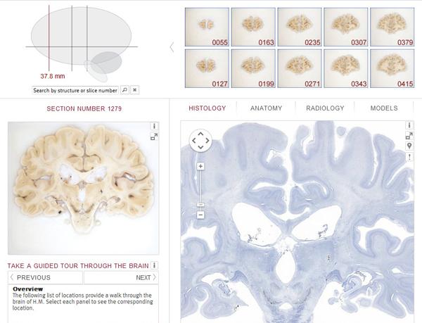 brainatlas2